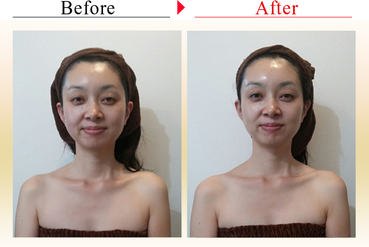 before after-1