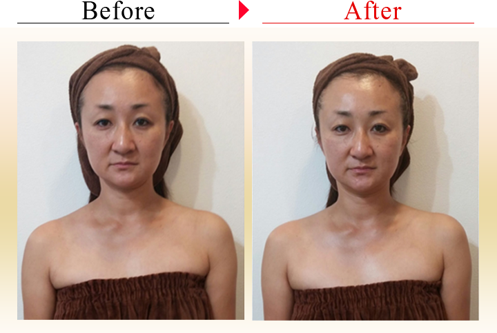 before after-2